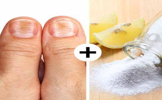 ترفندهای ساده وکاربردی برای ازبین بردن مشکلات پوستی