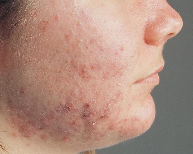 شوینده طبیعی که پوستتان را مثل مروارید درخشان می کند