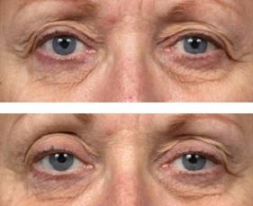 عوارض انجام بوتاکس در آرایشگاهها/ شناسایی جراحان در سایت جراحی پلاستیک و زیبایی