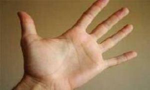 7 دلیل تورم انگشتهای دست