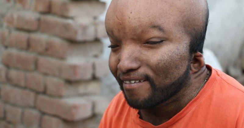 پزشکان در حیرت بیماری این مرد جوان مانده اند + تصاویر