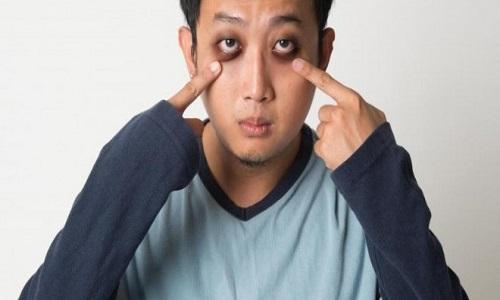 راهکاری برای از بین بردن پف چشم