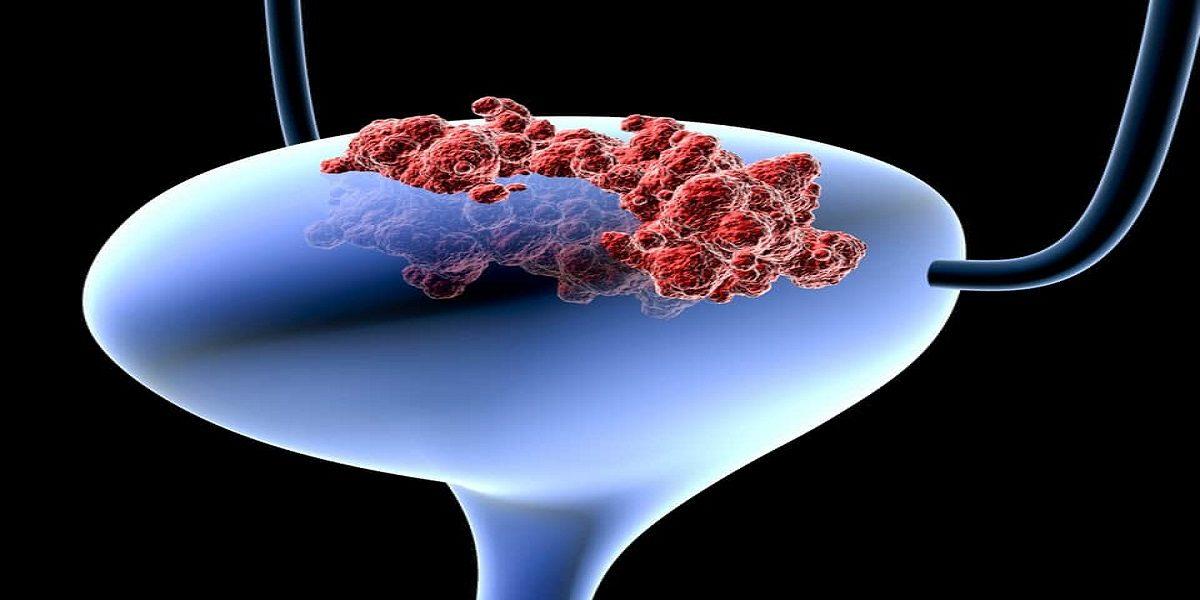 علائم سرطان مثانه که نباید به راحتی از آن بگذرید!,