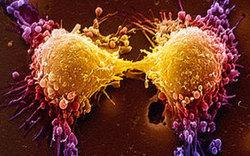 ۷ علامت هشدار دهنده در بدن که زنگ خطر ابتلا به سرطان هستند