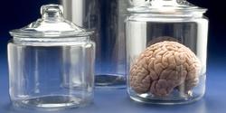 عجیبترین سرقتهای انجام شده در تاریخ؛ از مغز تا چمن!+ تصاویر