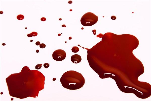تعیین سن مقتول با خون کشفشده در صحنه جرم