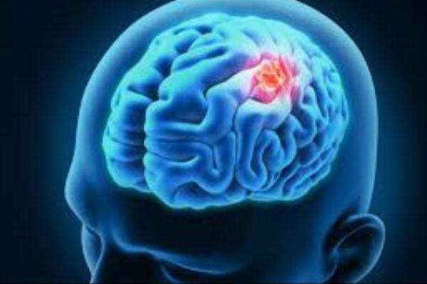 مقابله با سرطان مغز با استفاده از درمان ویروس فلج اطفال