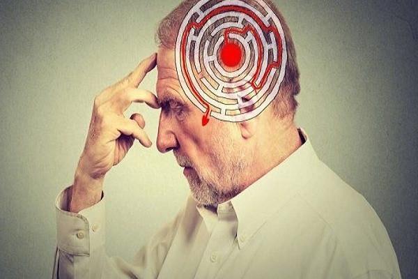 سلولهای کوچک موثر در بهبودی بیماری آلزایمر/  غربالگری اختلال حافظه راهی جدید در درمان
