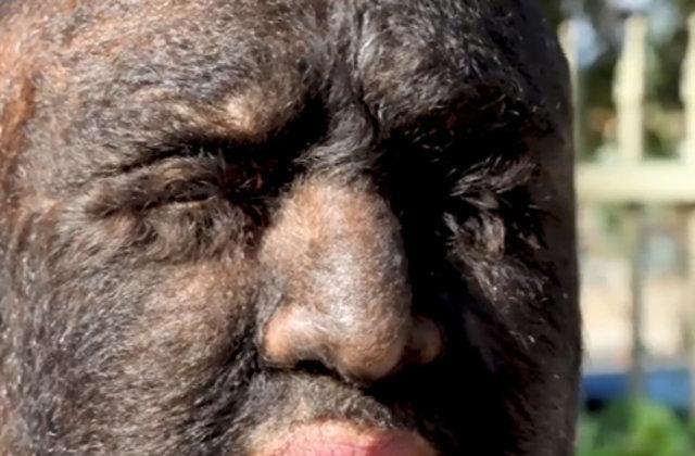 اختلال عجیب این مرد او را به هیولا تبدیل کرده است! +تصاویر