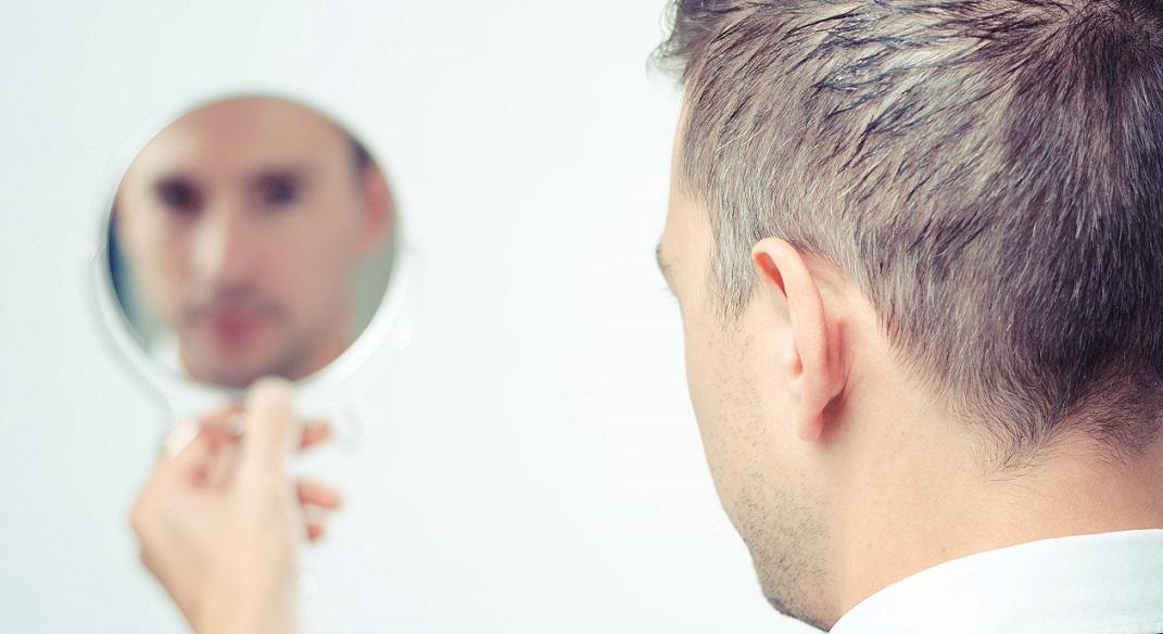 ریزش روزانه ۵۰ تا ۱۰۰ تار مو طبیعی است