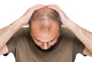 آب پیاز، درمان خانگی برای ریزش مو