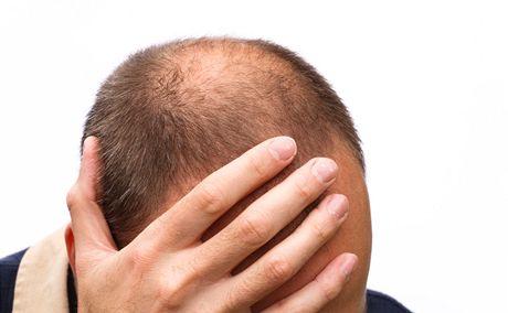 جلوگیری از ریزش مو با ۸ ترفند خانگی + اینفوگرافی