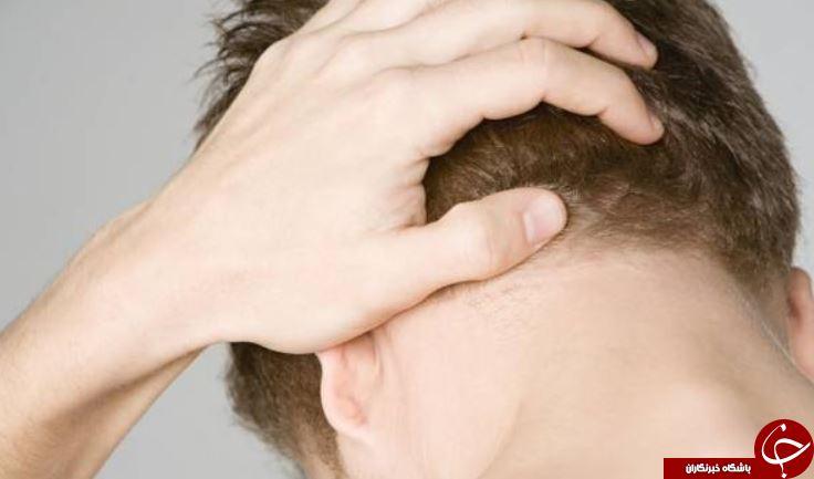 اگر پشت سرتان درد میکند و علتش را نمیدانید بخوانید/ علت درد در پشت سر + راهکارهای درمانی و پیشگیری