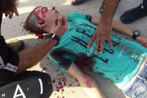 آسمانیشدن دو نوجوان فلسطینی میان خون و آتش+فیلم