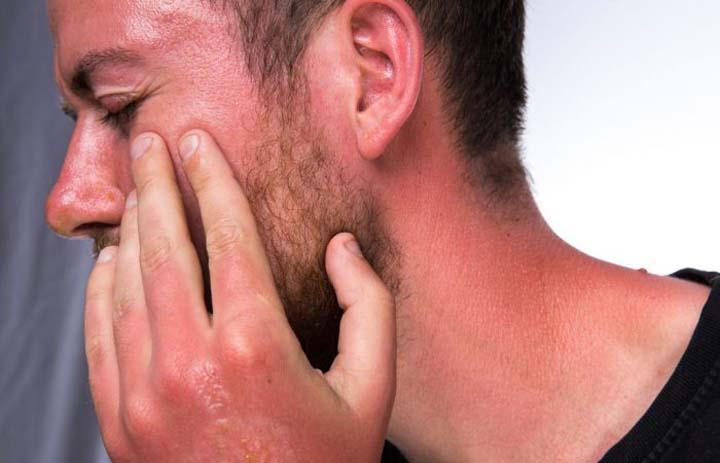 آفتاب سوختگی؛ علل و راههای درمان