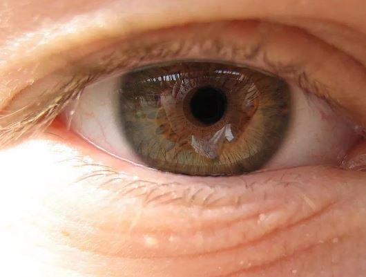 بهترین نسخه برای جلوگیری از ابتلا به بیماریهای چشمی