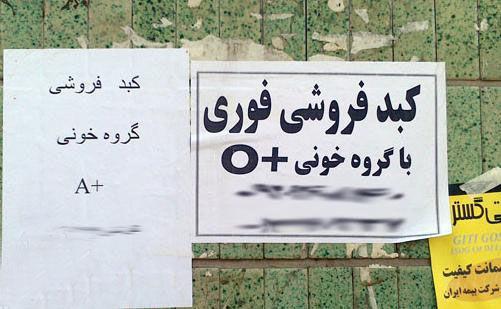ماجرای فروش کبد ۵۰۰ میلیونی در تهران صحت دارد؟