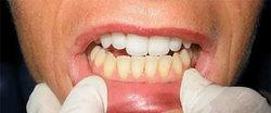۶ ترفند ارزان و موثر که دندانهایتان را مثل مروارید سفید میکند