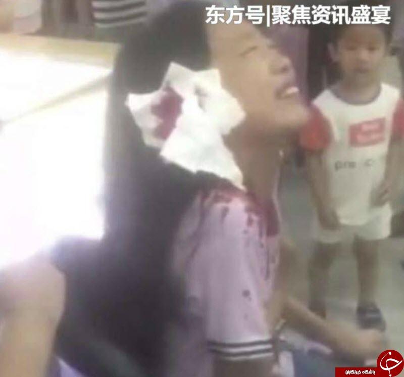لحظه وحشتناک گیر کردن سر دختر  نوجوان در پله برقی ! + فیلم