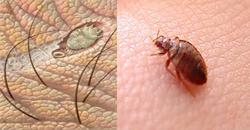 12 موجود خطرناک و غیرعادی که در بدن انسان ها زندگی میکنند!+تصاویر