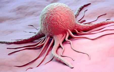 نوشابه گازدار مانع از عود مجدد سرطان روده میشود