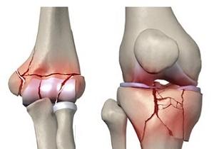 شکستگی استخوان در اواخر عمر با افزایش خطر مرگ همراه است