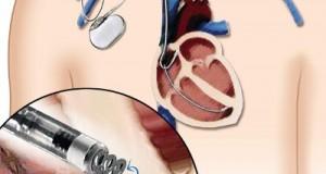 همه چیز درباره نارسایی قلبی/ چرا قلب به باتری نیاز پیدا میکند؟