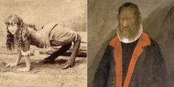 سرگذشت حقیقی ۷ انسان عجیب الخلقه که از شنیدنشان حیرتزده خواهید شد! +تصاویر