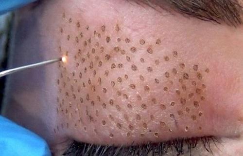 پوستی شاداب و جوان با پیوند سلولهای فیبروبلاست
