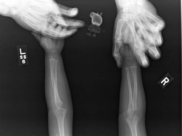 تصاویر عجیب و غریب رادیولوژی را ببینید