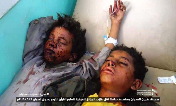حمله ائتلاف متجاوز سعودی به اتوبوس حامل دانش آموزان یک مدرسه قرآنی در یمن+ تصاویر دلخراش
