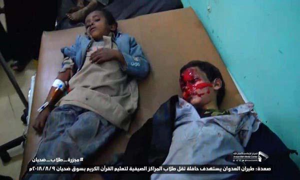حمله ائتلاف متجاوز سعودی به اتوبوس حامل دانشآموزان یک مدرسه قرآنی در یمن+ تصاویر دلخراش
