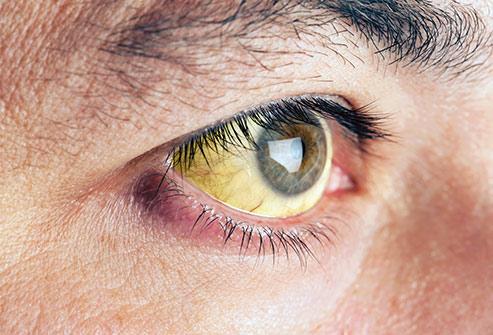 ویتامینهای مفید برای سلامت چشمها کدامند؟