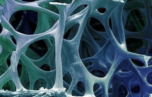 ///////سلولهای کوچکی که به جنگ بیماری خودایمن میروند/موفقیت پیوند مغز استخوان در سرطان خون