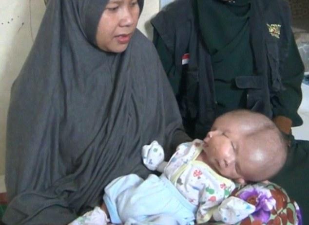 تولد نوزاد یک سر با دو صورت در اندونزی + فیلم