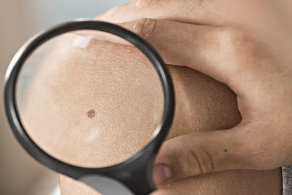 سرطان پوست نشانه خطر ابتلا به سرطان های دیگر است