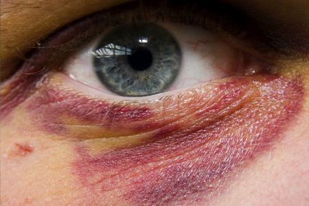 سیاهی و کبودی چشم چیست و چرا بعد از ضربه ایجاد میشود؟ + رااه درمان
