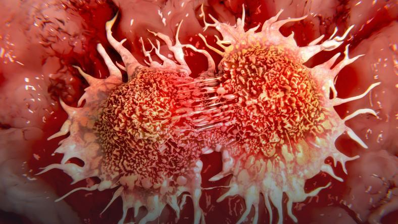 تمهیدات وزارت بهداشت برای پیشبرد برنامه ملی سرطان/ در آمایش سرزمین سرطان چه اقداماتی انجام میشود؟