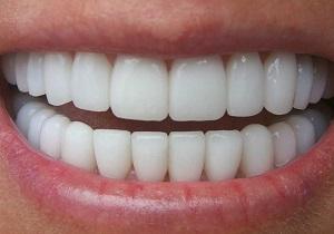 فرمولهای معجزه آسای طب سنتی برای سفید کردن دندانها