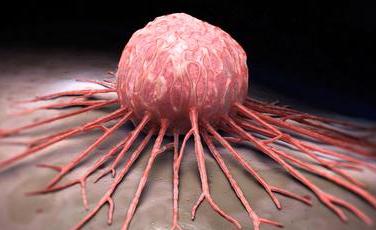 ۵ افسانه مدرن درباره سرطان/از تومور مغزی دایناسورها تا بازی سادهای که سرچشمه نگرانیها شد!