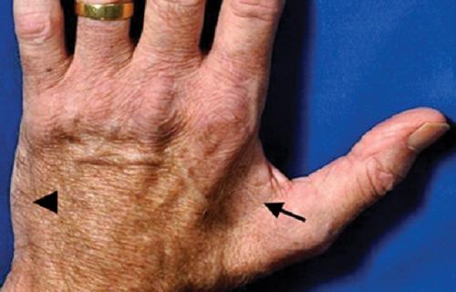 سلول درمانی در چه مواردی از ویتیلیگو (لک و پیس) کاربرد دارد؟