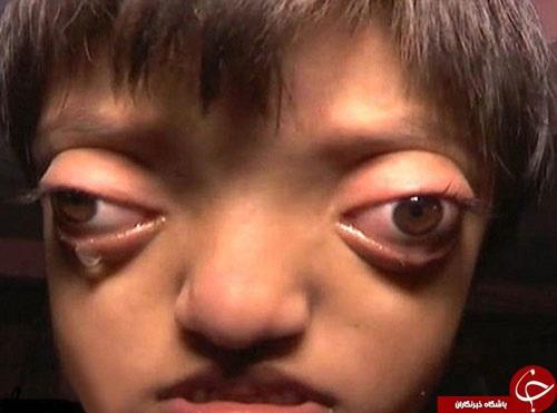بیماری که چشمانتان را از حدقه بیرون میآورد + تصاویر