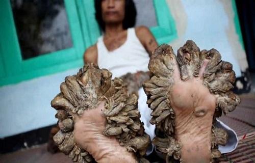 ////بیماری که در آن رویش ریشه درختان را مشاهده میکنید + تصاویر
