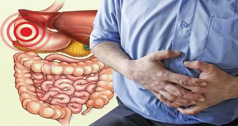 چگونه از نفخ شکم جلوگیری کنیم؟