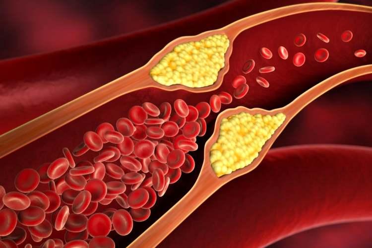 ماده غذایی که رگهای بسته بدن شما را باز میکند!