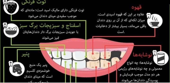 مواد غذایی که دندانهای شما را نابود میکنند+اینفوگرافیک