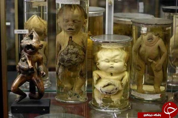 موزه های چندش آور و عجیب دنیا را بشناسید+تصاویر