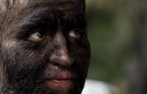 بیماری ناشناختهای که چهرهتان را شبیه به گرگ میکند+ تصاویر