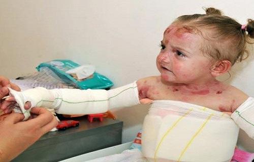 موفقیت در ترمیم زخم بیماران ایبی/جرقهای امید درمان بیماری پروانهای