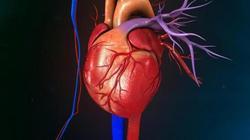 با این روش رگ های قلب خود را بازکنید+اینفوگرافی